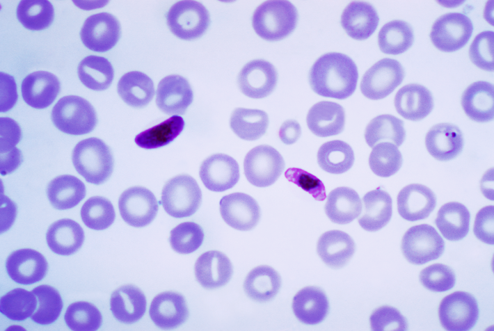 Plasmodium falciparum parasite a macro and microgametocyte