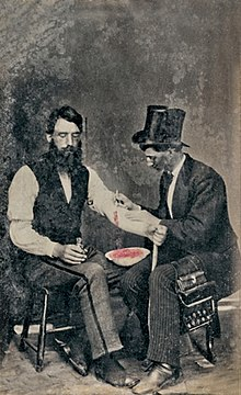 220px-BloodlettingPhoto from 1860 in Wikipedia